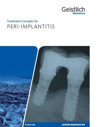 Treatment concepts for peri-implantitis