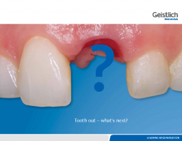 Tooth out – what's next