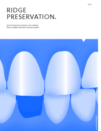 Geistlich News – Ridge Preservation