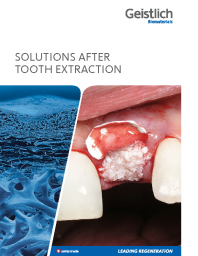 Solutions after tooth extraction